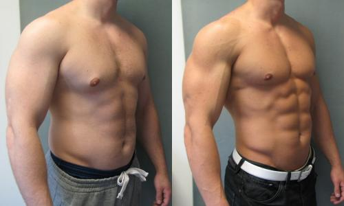 dr blau gynecomastia before and after