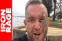 LEE PRIEST: WHY BODYBUILDERS STOPPED TRAINING HARD! Iron Rage